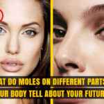 Moles on different Parts of Body