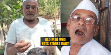 Man who eats 250 Grams of Stones
