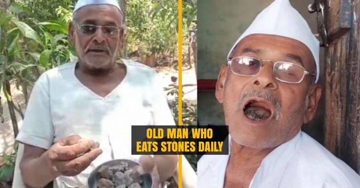 Man who eats 250 Grams of Stones